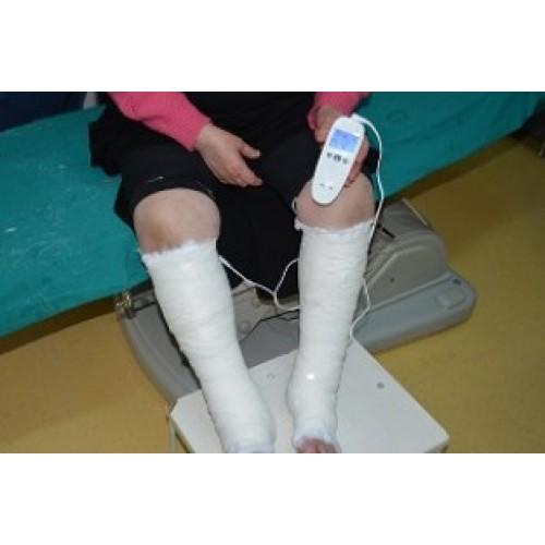 varice dureroase picioare